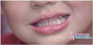 Beba i Zubi – Nicanje Mlečnih Zuba - Trudnoća i Zdravlje1