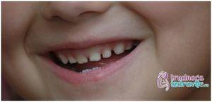 Beba i Zubi - Da li su mlečni zubi važni1 - Trudnoća i Zdravlje
