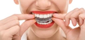 Specijalista oralne hirurgije, član stručnog tima portala Trudnoća i zdravlje o novoj metodi ispravljanja zuba providnim folijama  i pogodnostima nove metode.