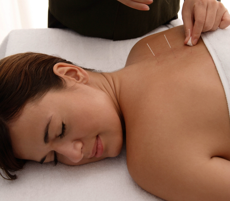 akupunktura i zdravlje žene (2)