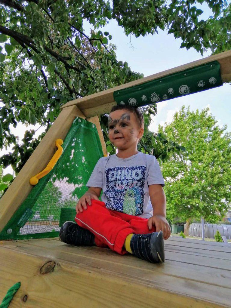 Svakodnevne aktivnosti deteta mogu pomoći u lečenju deformiteta stopala (3)