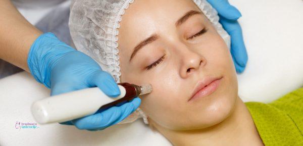 Dermapen tretman za kožu
